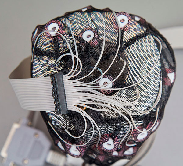 Апарат ЕЕГ
